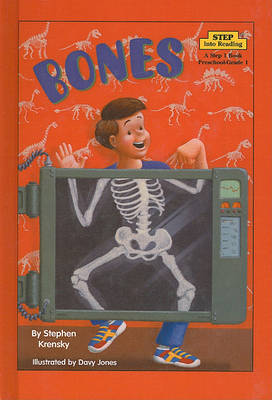 Bones by Dr Stephen Krensky