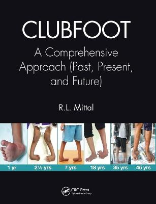 Clubfoot: A Comprehensive Approach (Past, Present, and Future) by R. L. Mittal