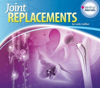 Joint Replacements by Leslie Galliker