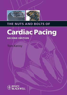 The Nuts and Bolts of Cardiac Pacing 2E by Tom Kenny