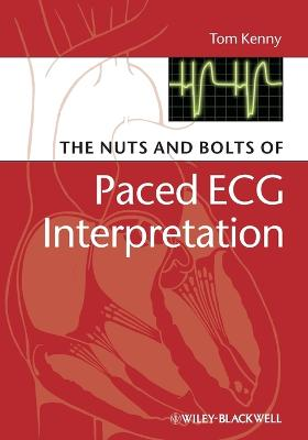 The Nuts and bolts of Paced ECG Interpretation by Tom Kenny