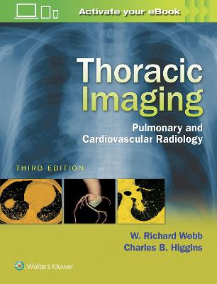 Thoracic Imaging by W.Richard Webb