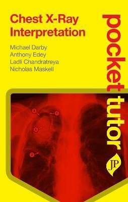 Pocket Tutor Chest X-Ray Interpretation by Michael Darby