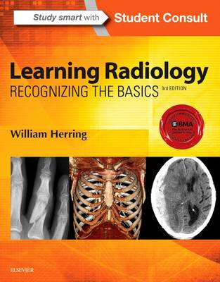 Learning Radiology by William Herring