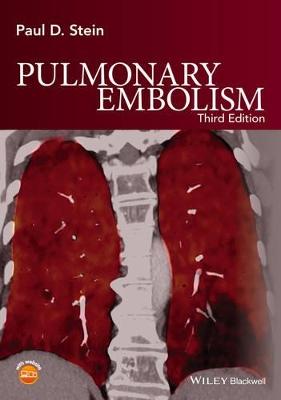 Pulmonary Embolism 3E by Paul D. Stein