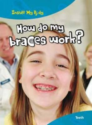 How do my Braces Work? by Steve Parker