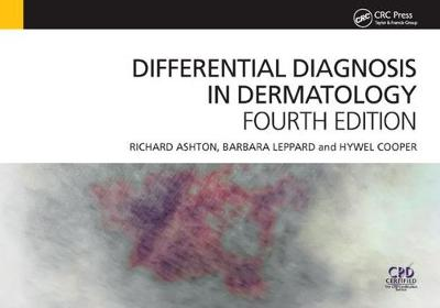 Differential Diagnosis in Dermatology, 4th Edition book