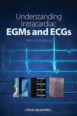 Understanding Intracardiac EGMs and ECGs by Fred M. Kusumoto