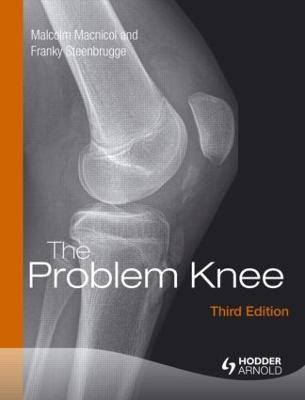 Problem Knee by Malcolm Macnicol