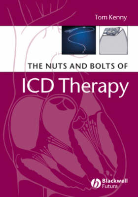 Nuts and Bolts of ICD Therapy by Tom Kenny