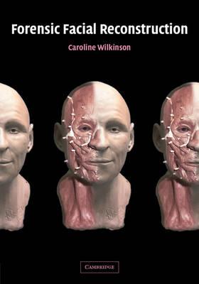 Forensic Facial Reconstruction book