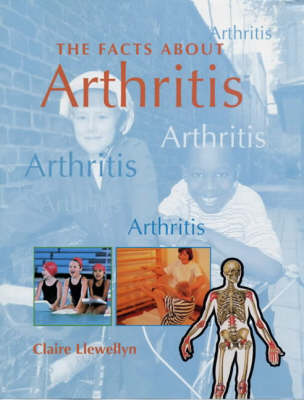 FACTS ABOUT ARTHRITIS by Claire Llewellyn