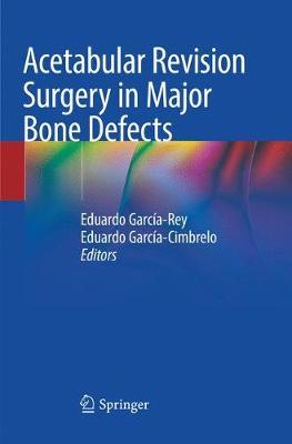 Acetabular Revision Surgery in Major Bone Defects by Eduardo Garcia-Rey