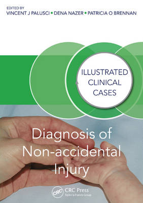 Diagnosis of Non-accidental Injury by Vincent J. Palusci