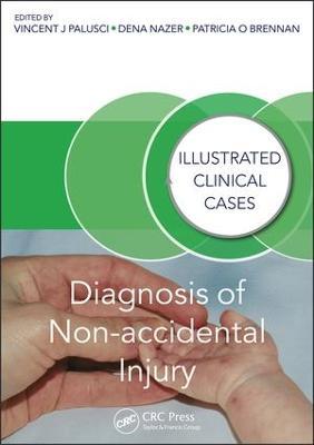 Diagnosis of Non-accidental Injury book