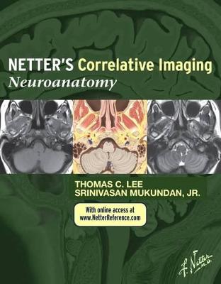 Netter's Correlative Imaging: Neuroanatomy by Thomas C. Lee