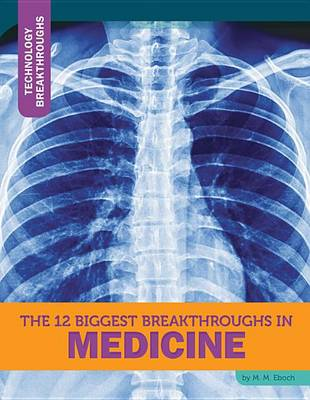 The 12 Biggest Breakthroughs in Medicine by M M Eboch