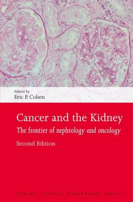 Cancer and the Kidney book