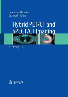 Hybrid PET/CT and SPECT/CT Imaging: A Teaching File by Dominique Delbeke