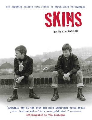 Skins by Gavin Watson