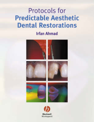 Protocols for Predictable Aesthetic Dental Restorations by Irfan Ahmad