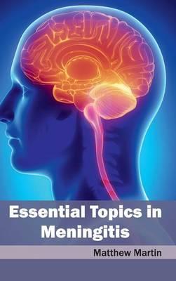Essential Topics in Meningitis by Matthew Martin