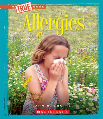 Allergies by Ann O Squire