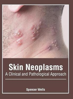 Skin Neoplasms: A Clinical and Pathological Approach by Spencer Wells