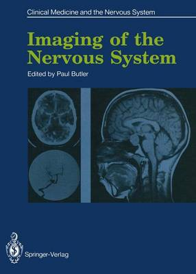 Imaging of the Nervous System by Paul Butler