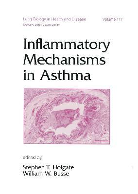 Inflammatory Mechanisms in Asthma by Professor Stephen T. Holgate