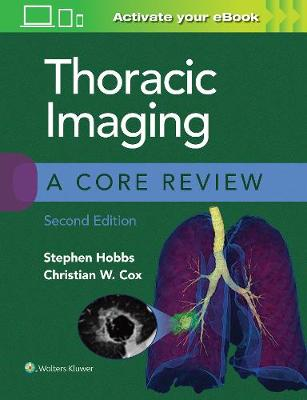 Thoracic Imaging: A Core Review by Stephen Hobbs