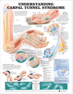 Understanding Carpal Tunnel Syndrome Anatomical Chart book