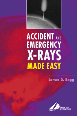 Accident and Emergency X-rays Made Easy, International Edition by James D. Begg