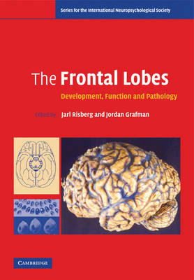 Frontal Lobes book