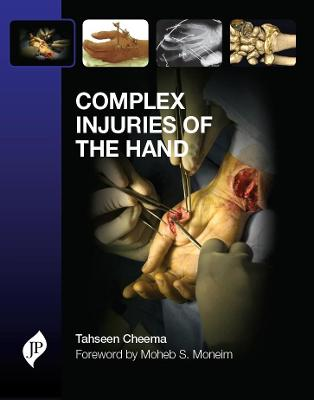 Complex Injuries of the Hand book