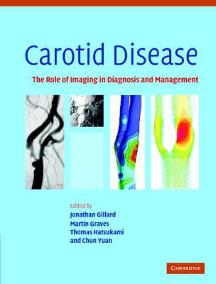 Carotid Disease book