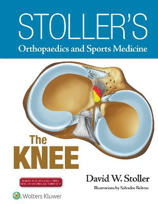 Stoller's Orthopaedics and Sports Medicine: The Knee by David W. Stoller