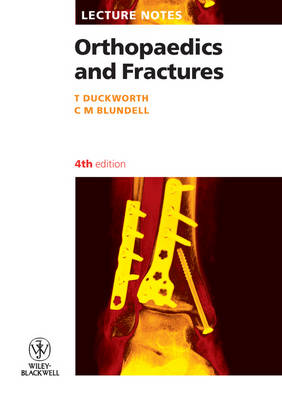 Orthopaedics and Fractures book
