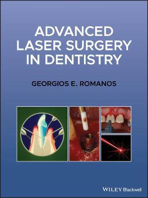 Advanced Laser Surgery in Dentistry by Georgios E. Romanos