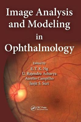 Image Analysis and Modeling in Ophthalmology by Eddie Y. K. Ng