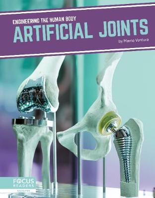 Engineering the Human Body: Artificial Joints by Marne Ventura