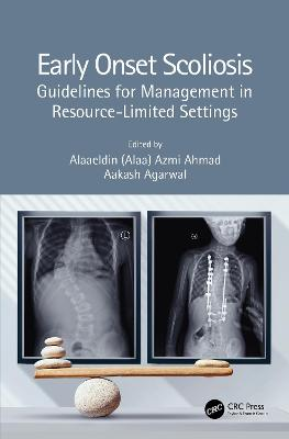 Early Onset Scoliosis: Guidelines for Management in Resource-Limited Settings by Alaaeldin (Alaa) Azmi Ahmad