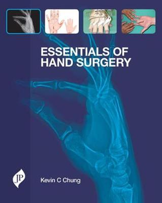Essentials of Hand Surgery by Kevin C. Chung