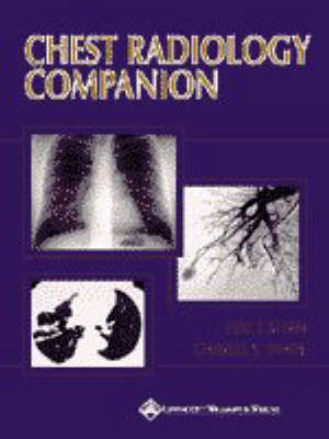 Chest Radiology Companion: Methods Guidelines and Imaging Fundamentals by Eric Stern