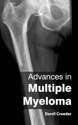Advances in Multiple Myeloma by Darell Crowder