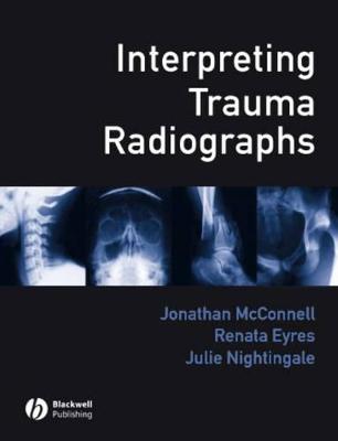 Interpreting Trauma Radiographs book