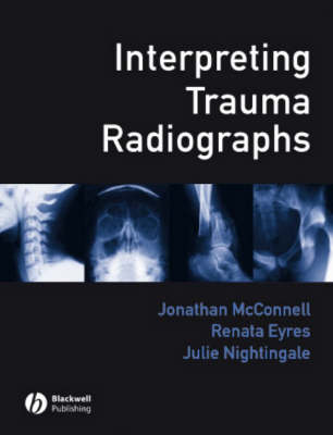 Interpreting Trauma Radiographs by Jonathan McConnell