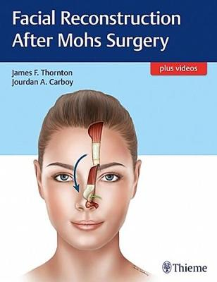 Facial Reconstruction After Mohs Surgery by James Thornton