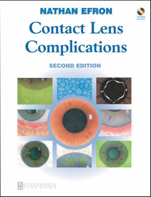 Contact Lens Complications: Textbook Plus Online by Nathan Efron