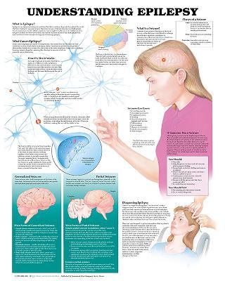 Understanding Epilepsy Anatomical Chart by Anatomical Chart Company